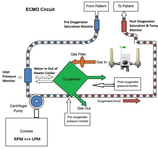 Pelayanan Teknologi Extra Corporeal Membrane Oxygenator Unit Pediatrik