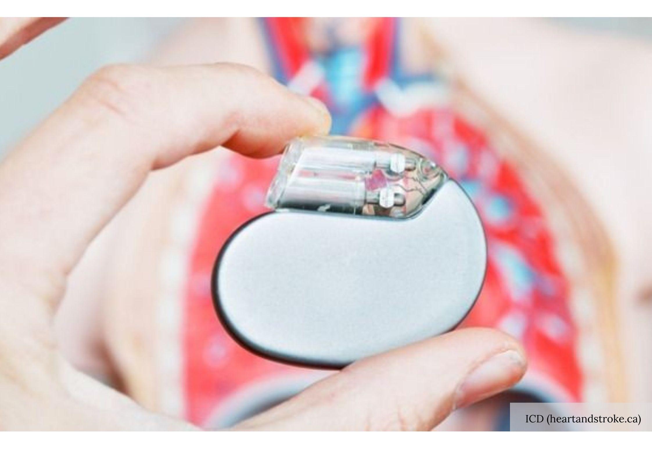 Sebuah Alat Kecil Yang Dapat Mencegah Kematian Jantung Mendadak