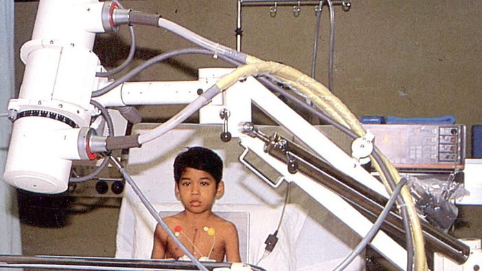 Ini Dia Pasien Operasi Jantung Pertama di RS Harapan Kita 34 Tahun Silam